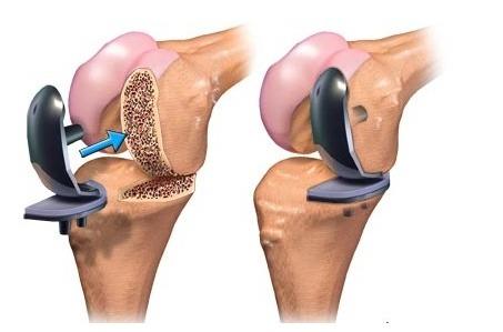 손상된 부분만 새로운 관절로 바꿔주는 인공관절 부분치환술 강남구연세사랑병원
